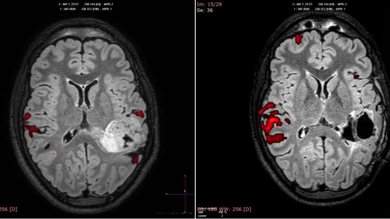 El área de Wernicke de José antes y después de la rehabilitación, cuando pasó al hemisferio derecho. (Unidad de Imagen Molecular, Centro de Investigaciones Médico-Sanitarias, UMA)