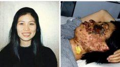 Un rostro destruido: la historia de la foto que muestra al mundo la brutalidad del régimen chino