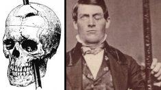 El extraño caso del hombre cuya personalidad cambió luego que un fierro atravesara su cráneo