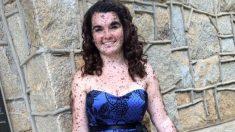 """""""Orgullosa de ser diferente"""", dice una joven cubierta por cientos de marcas de nacimiento"""