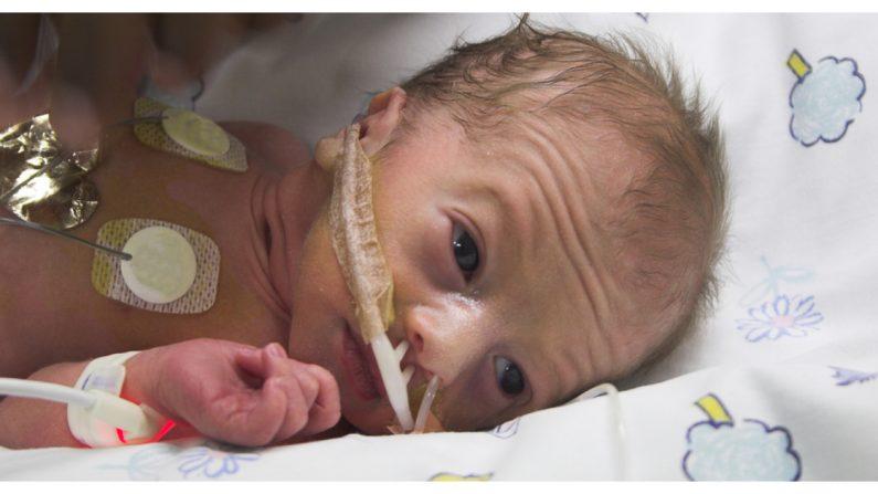 Las aventuras de un bebé prematuro internado 131 días en la UCIN enseñan cómo se gana una batalla