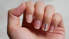 Una raya oscura debajo de la uña podría ser una señal de cáncer, advierten especialistas
