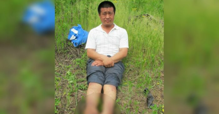 Una foto sin fecha de Wang Xinchun a quien le tuvieron que amputar los pies después de haber sido torturado por la policía china en 2002. Murió en China el 23 de abril de 2019 después de sufrir años de tortura y abuso a manos del régimen comunista. (Minghui.org)