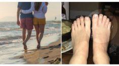Docenas de gusanos anidan en los pies de una pareja mientras están de vacaciones en playa caribeña