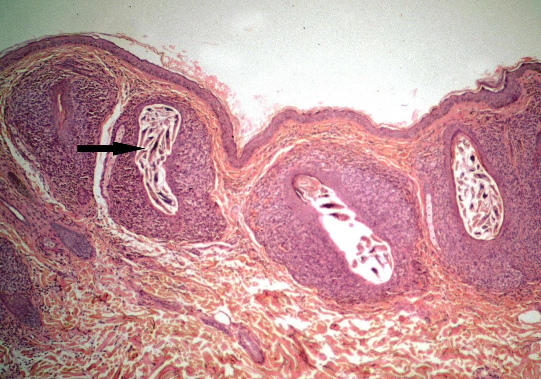 acaros en las pestañas microscopio