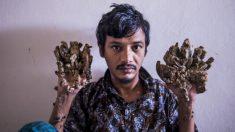 """El """"hombre árbol"""" de Bangladesh pide que le amputen las manos pues no soporta más el dolor"""