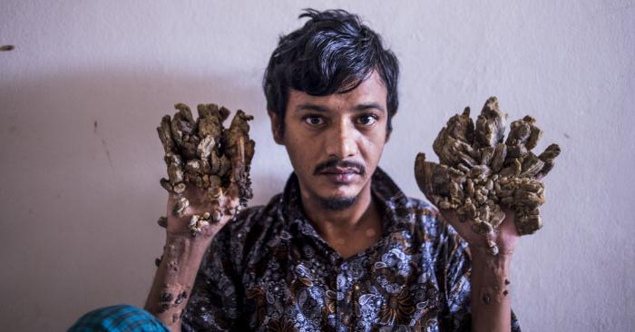 """Abul Bajandar, apodado """"Hombre Árbol"""" por las enormes verrugas en forma de corteza en sus manos y pies, en el Hospital del Colegio Médico de Dhaka en Dhaka el 24 de junio de 2019. Foto de MUNIR UZ ZAMAN/AFP/Getty Images."""