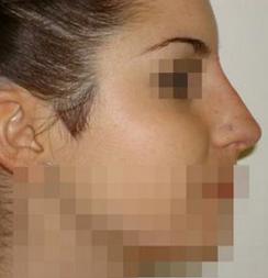 Le gustaba tomar Sol sin protección pero una espinilla se transformó en cáncer y perdió parte de la nariz