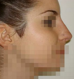 Nariz en una imagen de archivo. Mujer de Francia que tomaba mucho Sol pierde la punta de su nariz al desarrollar un cáncer. (Wikimedia Commons)