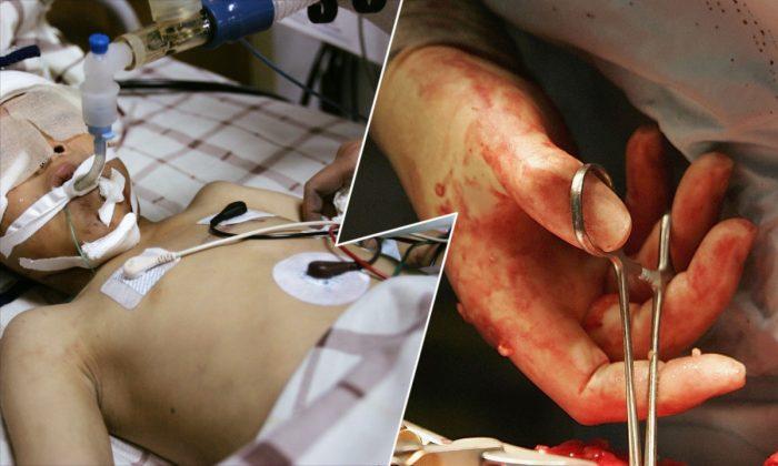 (Izq) Un niño chino hospitalizado. (China Photos/Getty Images) -- (Der) Operación de trasplante de riñón. (Christopher Furlong/Getty Images)