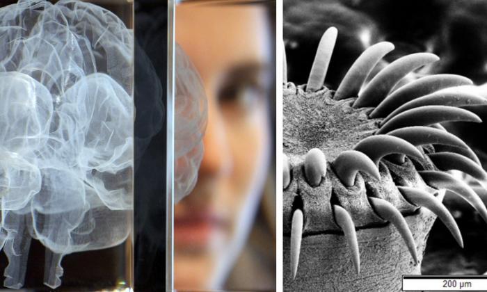 """Derecha: Una mujer posa detrás de una obra de arte en forma de cerebro el 27 de marzo de 2012 en Londres, Inglaterra. (Dan Kitwood/Getty Images) Izquierda: Una imagen de microscopio electrónico de la cabeza de una tenia. (""""Tenia SEM"""" por Mogana Das Murtey y Patchamuthu Ramasamy (CC BY-SA 3.0 ept.ms/2Bw5evC)"""
