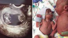 Rechaza interrumpir la vida de uno de sus gemelos, 34 semanas después, ¡fue la mejor decisión!