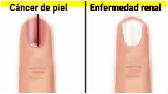 10 signos de las uñas que revelan mucho sobre tu salud. Si ves líneas negras consulta a tu médico