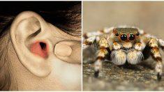 El dolor de oído de una mujer resulta ser una araña que ha estado viviendo ahí adentro