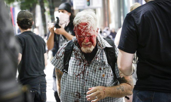 Un manifestante no identificado herido por extremistas del Antifa en Pioneer Courthouse Square, el 29 de junio de 2019. (Moriah Ratner/Getty Images)
