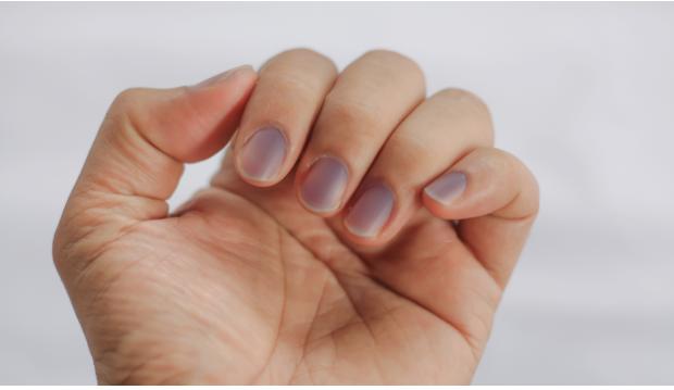 crestas horizontales en las uñas y diabetes
