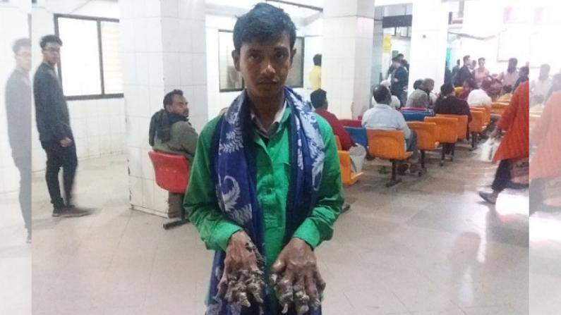 """Abul Bajandar, apodado el """"Hombre Árbol"""" de Bangladesh, muestra sus manos en el hospital de Dhaka el 21 de enero de 2019, mientras que los crecimientos en forma de corteza en su mano siguen aumentando. (Crédito: STR/AFP/Getty Images)"""