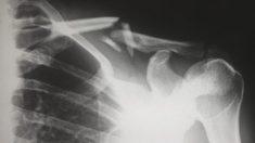 Mujer portuguesa es operada luego de que el implante anticonceptivo se le traslada al pulmón