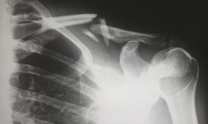Imagen ilustrativa de una radiografía. (Harlie Raethel/Unsplash)
