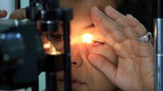 Queda ciego de un ojo por parásito que entró al ducharse con lentes de contacto