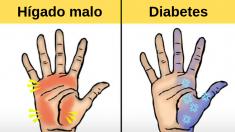 10 cosas que tus manos pueden decir sobre tu salud. ¿Tienes manos secas, rojas o frías?
