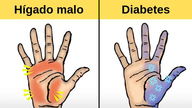 sequedad de la piel y diabetes