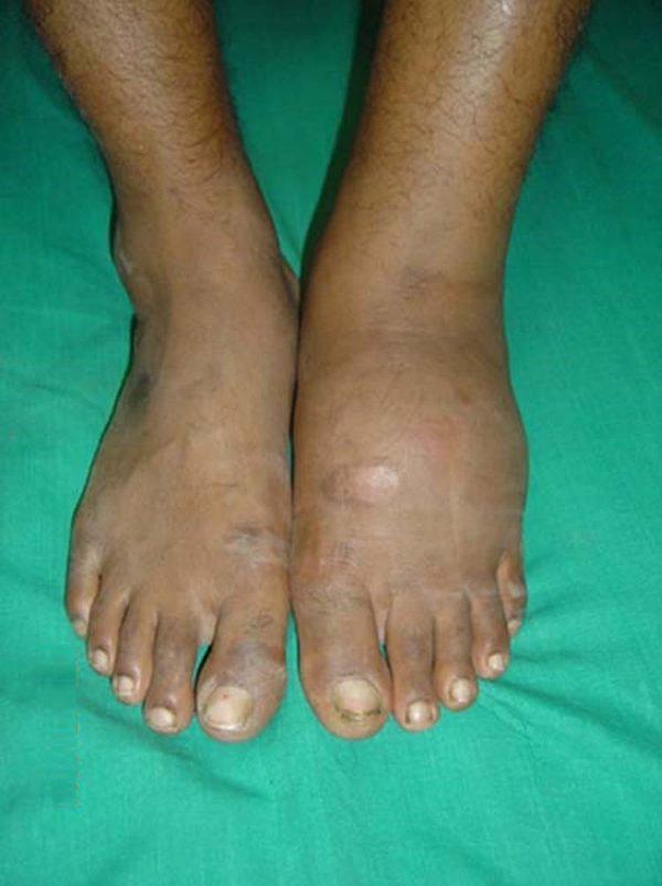 infección de la diabetes del pie hinchado