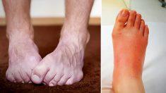 10 cosas que tus pies revelan acerca de tu salud: ¿están tus pies fríos todo el tiempo?