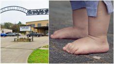 Bebita juega descalza en el patio de la guardería y termina sufriendo quemaduras de segundo grado