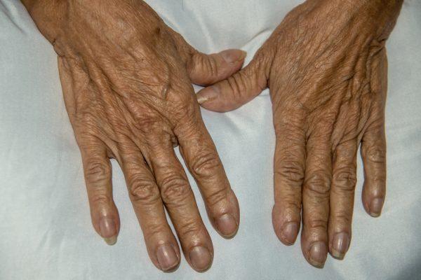 puntas de los dedos hinchadas de diabetes