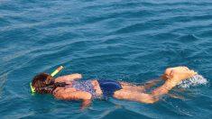 Una niña de 16 años sufre graves quemaduras de sol en la espalda luego de bucear en el Caribe
