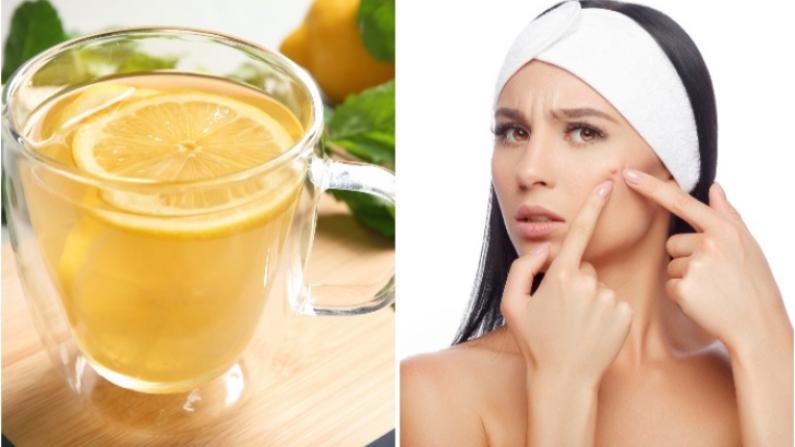 El agua de limón ayuda a muchos problemas de salud, incluido el acné Imagen Ilustrativa. (New Africa / Shutterstock)