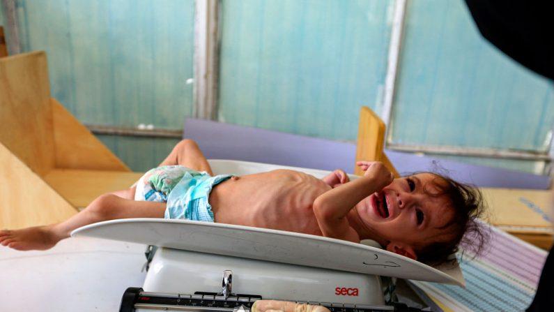 Imagen de archivo de un niño con severa desnutrición mientras es pesado en un centro de salud. (MOHAMMED HUWAIS/AFP/Getty Images)
