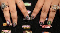 Mujer se hizo la manicure y debió ser operada de urgencia para no perder el dedo