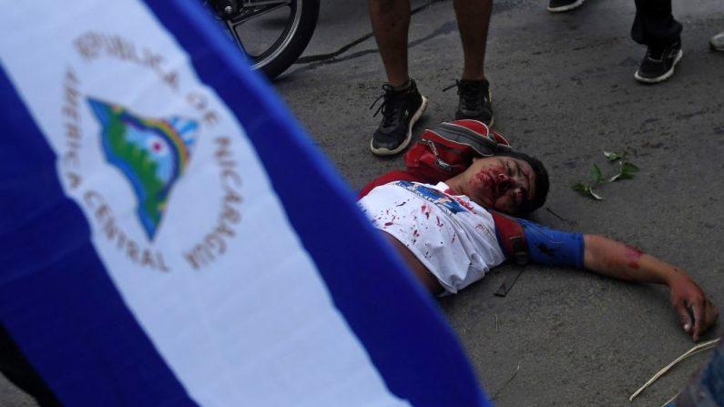 """Un manifestante antigubernamental yace en el terreno durante los enfrentamientos dentro de la """"Marcha de las Flores"""" en Managua, el 30 de junio de 2018. Al menos seis personas fueron asesinadas a tiros ese sábado mientras protestaban contra el presidente Daniel Ortega en la capital de Nicaragua, dijo un reportero AFP que se encontraba presente. (MARVIN RECINOS/AFP/Getty Images)"""