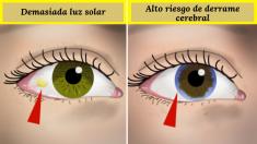 10 cosas que dicen tus ojos sobre tu salud. ¡Cuidado si ves este anillo alrededor de tu iris!