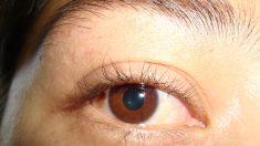 Mujer sufre llorando hasta 50 lágrimas de cristal al día sin encontrar cura médica