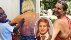 """Víctima de quemaduras deja de ocultarse luego de 47 años: """"Mis cicatrices son maravillosas"""""""