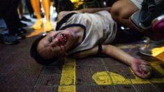 Polícia de Hong Kong é acusada de tratamento discriminatório durante confrontos entre manifestantes pró-Pequim e pró-democracia