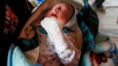 Niño argentino de 2 años sobrevive milagrosamente a graves quemaduras de agua hirviendo