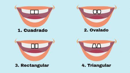 La forma de los dientes frontales puede revelar su personalidad: rectangulares implican liderazgo