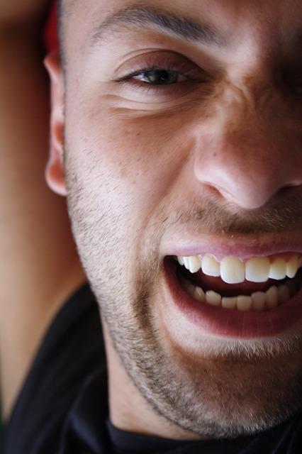 Dientes-sonrisa