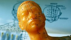 Cómo encontrar un buen acupunturista de la medicina china