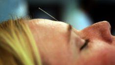La acupuntura puede ayudar en el tratamiento del cáncer de mama