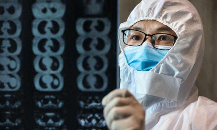 Un médico observa una imagen de una tomografía computarizada de un pulmón en un hospital del condado de Yunmeng, ciudad de Xiaogan, en la provincia central de Hubei, China, el 20 de febrero de 2020. (STR/AFP vía Getty Images)