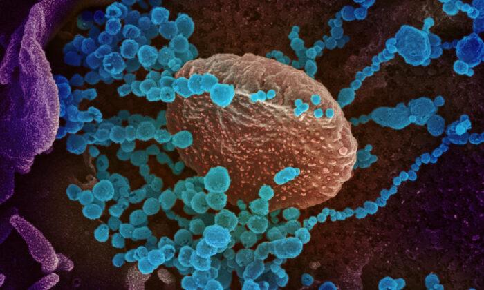 El COVID-19 puede causar que el sistema inmunológico de pacientes ataque sus propias células: estudio