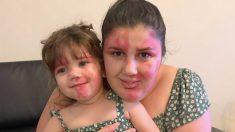"""Madre pinta su cara con la marca de nacimiento de su niña: """"Quería ser tan hermosa como ella"""""""