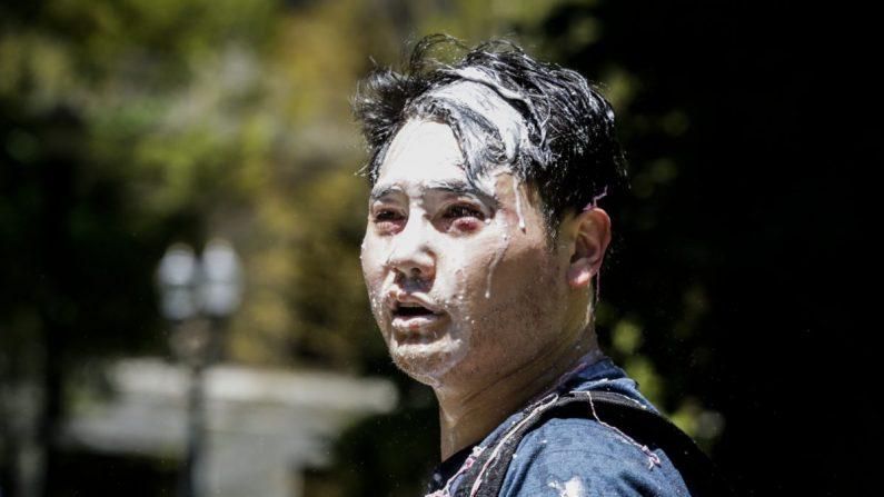 Andy Ngo, un periodista de Portland, se ve cubierto de una sustancia desconocida después de ser atacado por Antifa en Portland, Oregon, el 29 de junio de 2019. (Moriah Ratner/Getty Images)
