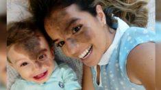Mamá se pinta en la cara la misma marca de nacimiento de su hijo y lo ayuda a construir su autoestima
