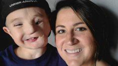 """Madre se desconsuela cuando llaman a su hijo """"monstruo"""", porque un perro le desfiguró la cara"""